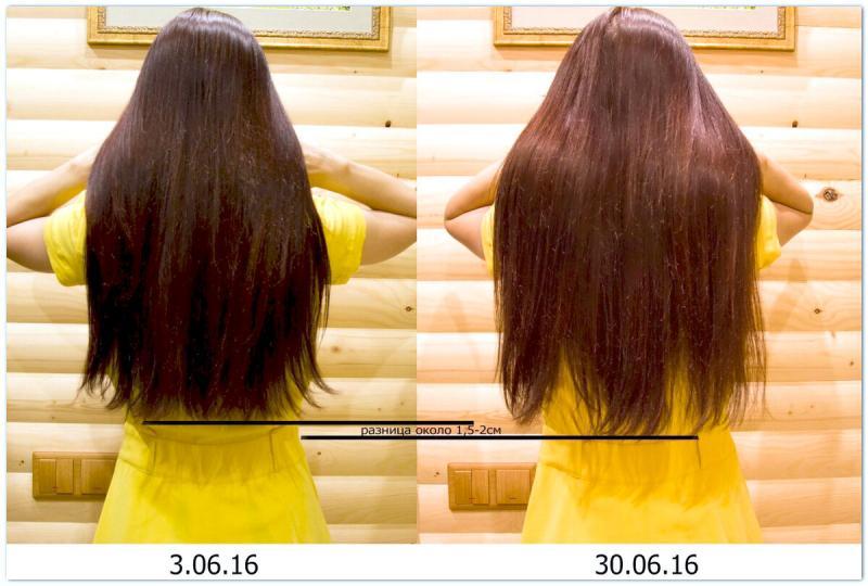Как отрастить волосы в домашних условиях😍