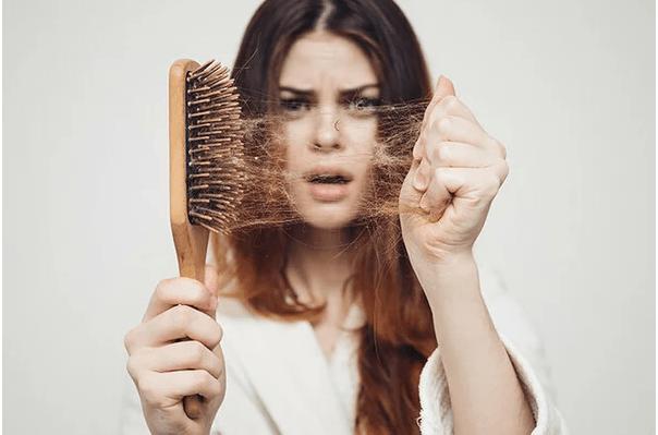 Выпадение волос — проблема №1