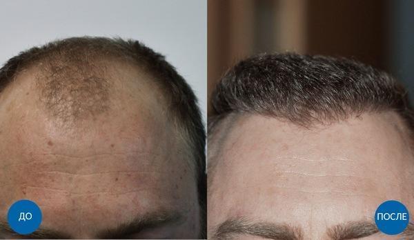 Уход за волосами: правила и советы для здоровых волос