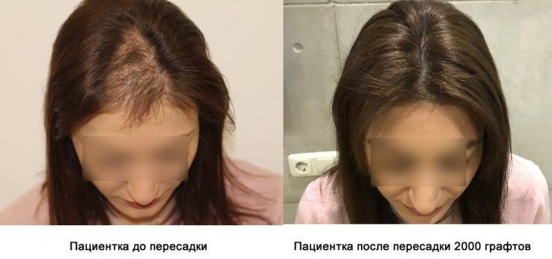 Выпадение волос: советы врачей