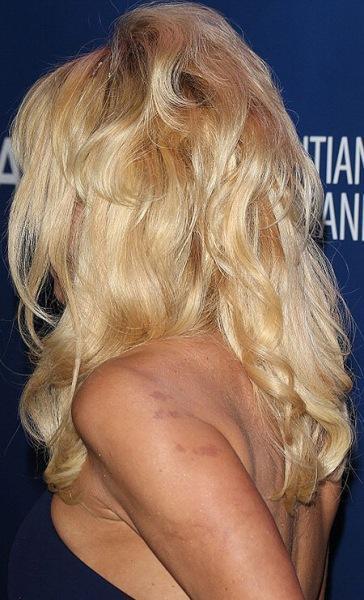 Накладочка вышла: звезды, попавшиеся нанаращенных волосах