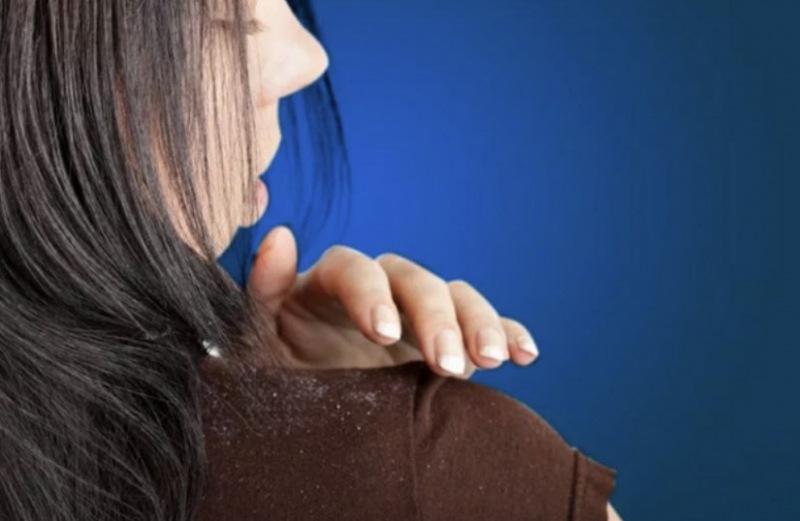 Перхоть: симптомы и причины