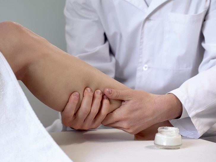 Предотвратить или лечить: откуда берется варикоз, и можно ли с ним попрощаться навсегда